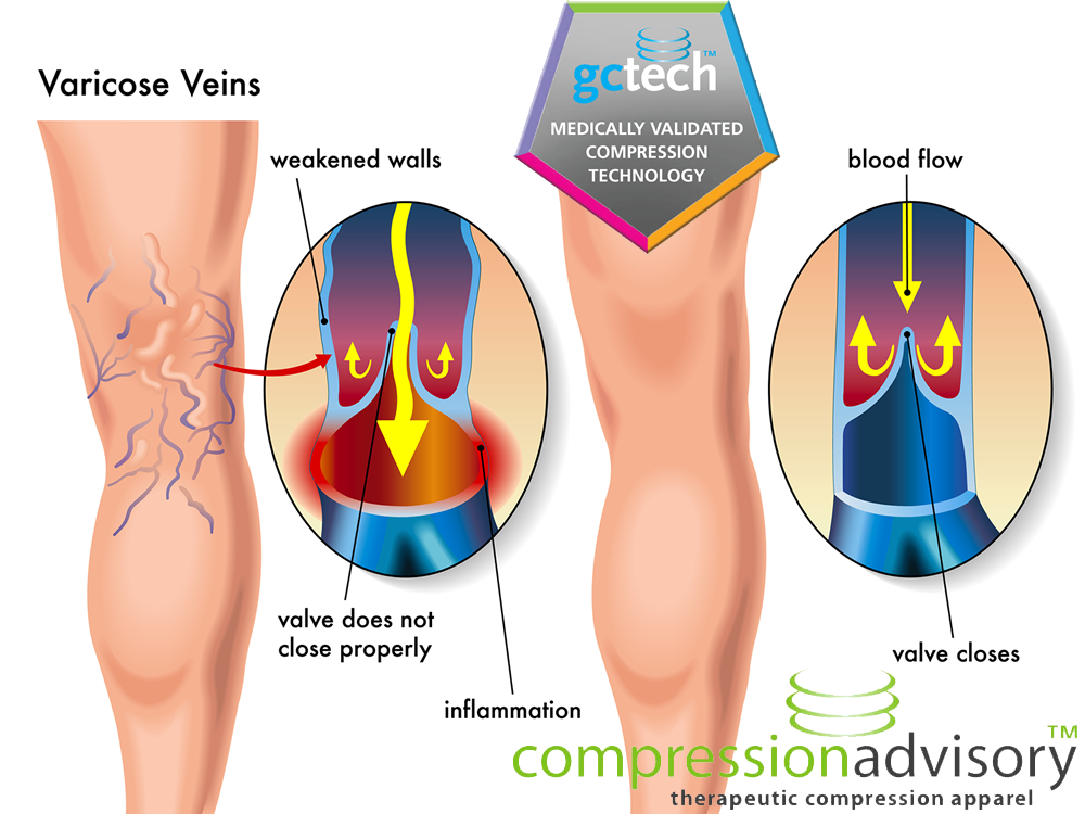 how do veins work
